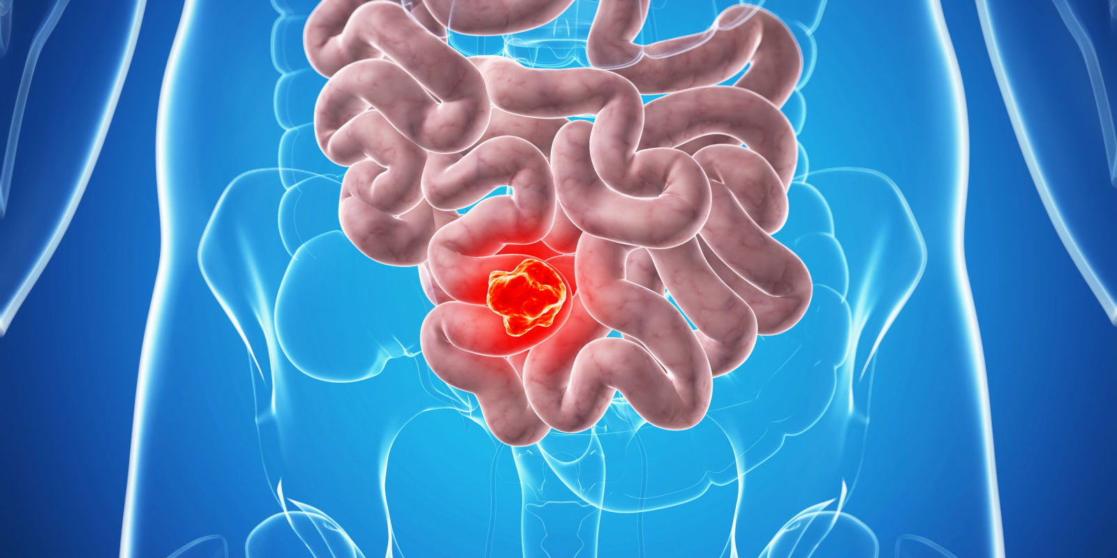 Bowel Cancer Colon Cancer Causes Symptoms Diagnosis