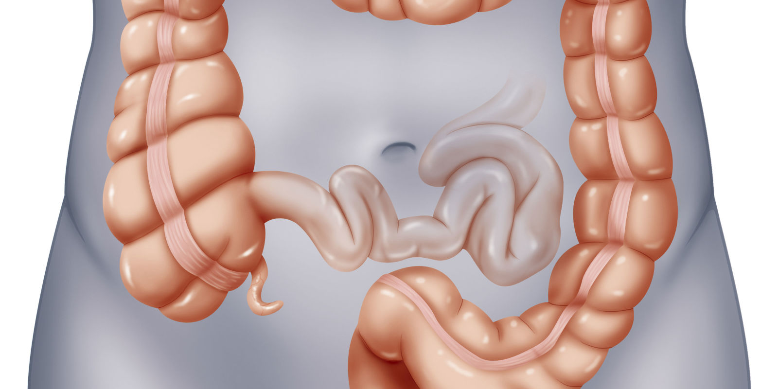 Polyps in the colon large bowel biocorpaavc
