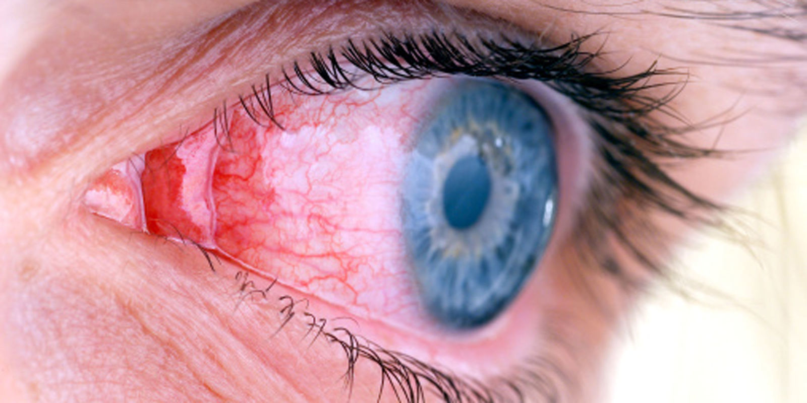03 How To Prevent Conjunctivitis