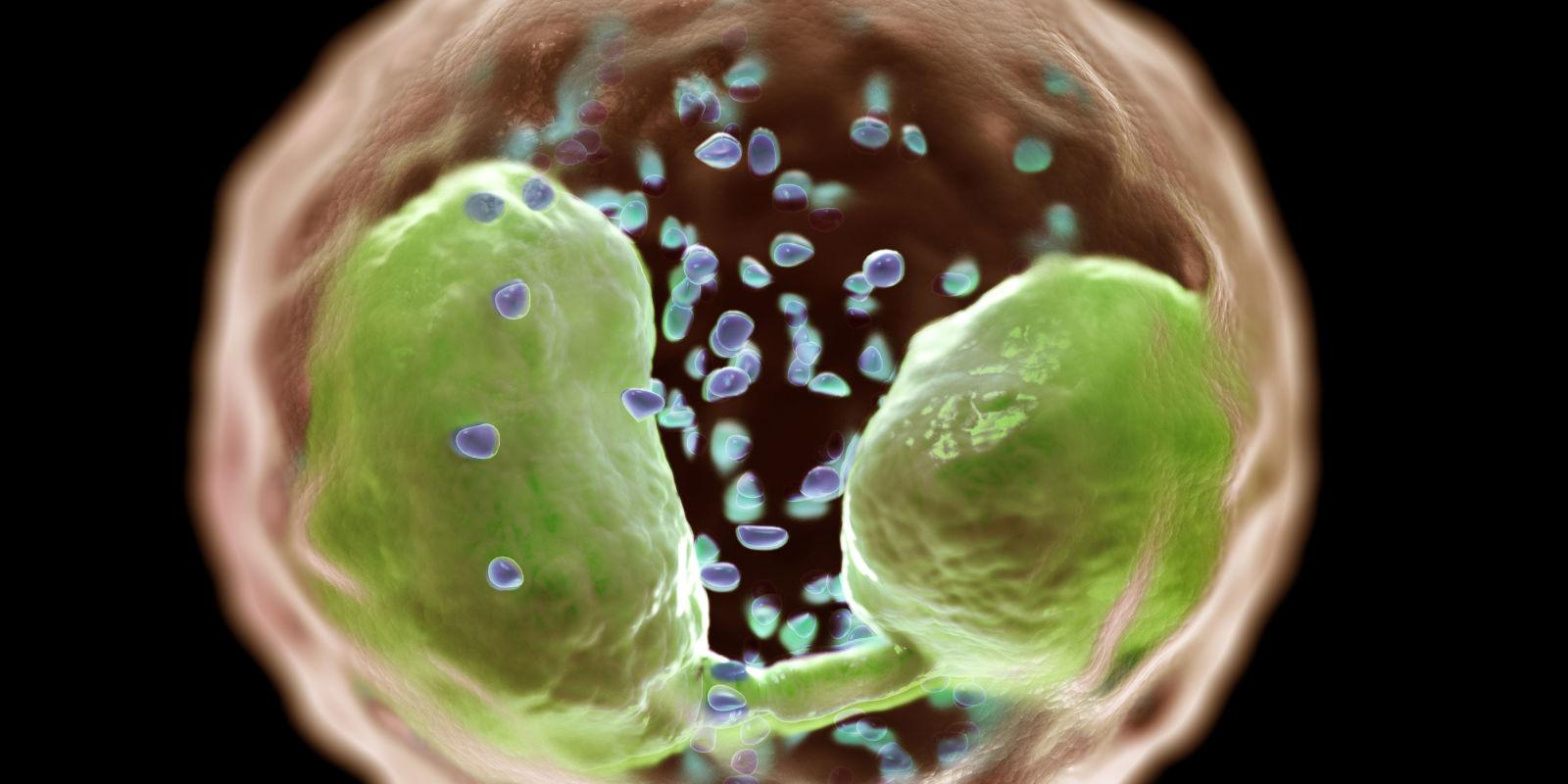 Eosinophilia