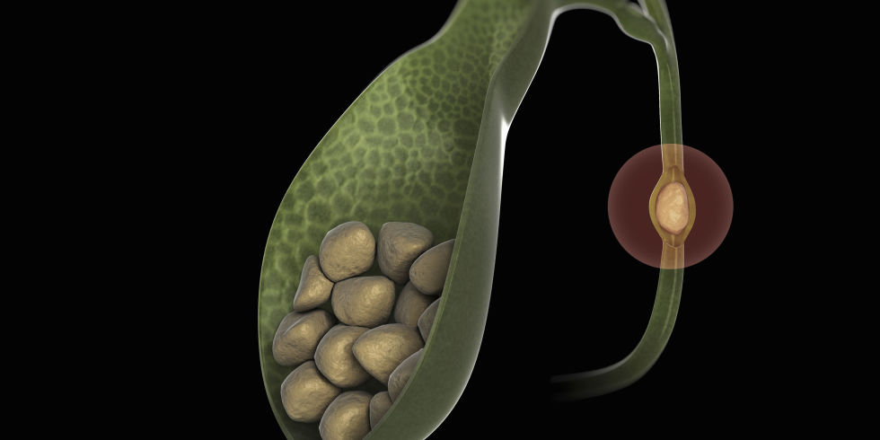 gallstones, Human Body