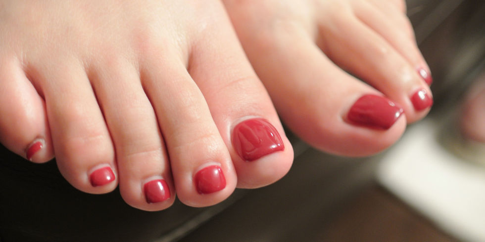 Fungal nail infection (ringworm of the nails)