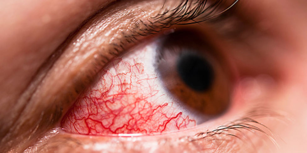 conjunctivitis: treatment, causes, symptoms, Skeleton