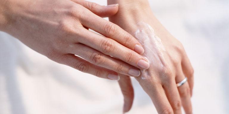 Woman applying hand cream eczema