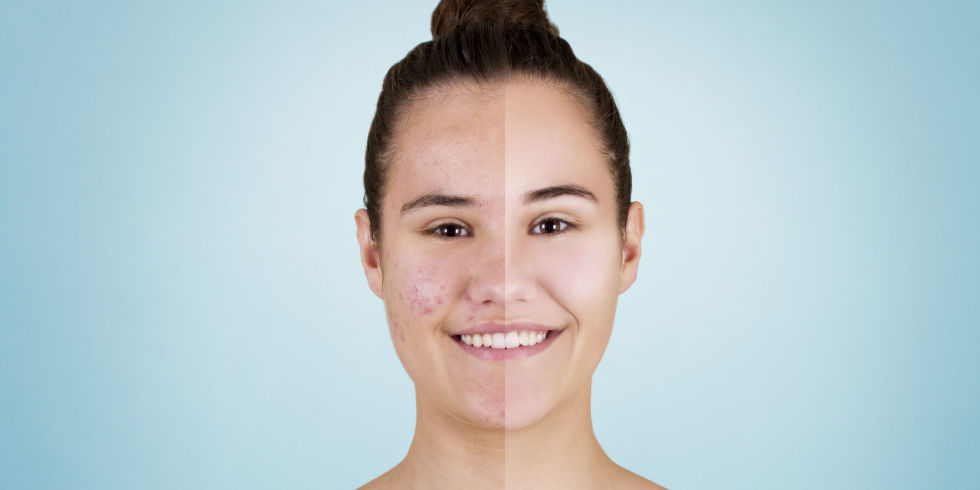 treatment acne Alternative for adult